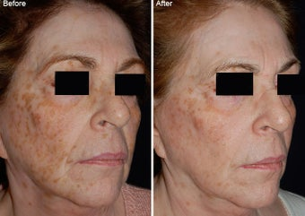 Fraxel Laser Resurfacing before 97772