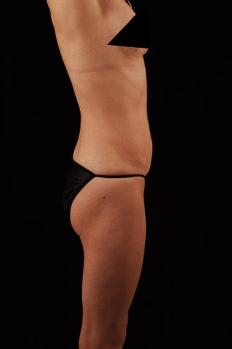 Liposuction after 513558