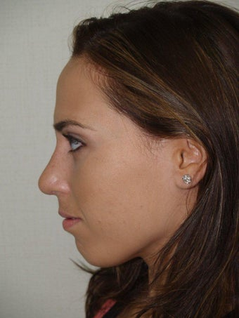 Rhinoplasty after 229068