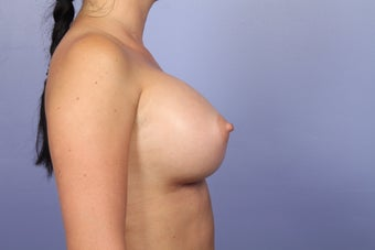 Breast Augmentation after 338712