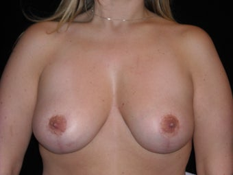 Vertical breast lift after 275249