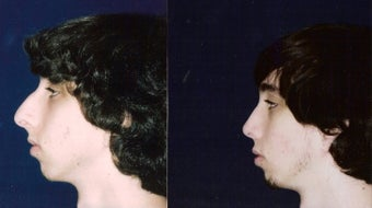 Rhinoplasty and Septoplasty after 241678