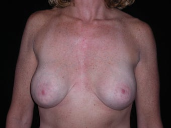 Removal and replacement of breast implants and breast lift before 237757