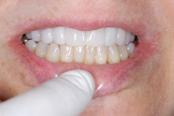 Lumineers Dental Veneers after 382135