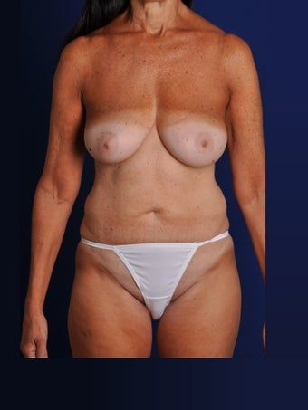 Vaser Hi Def Liposuction of abdomen, thighs, flanks and back with fat injections to buttocks before 422729