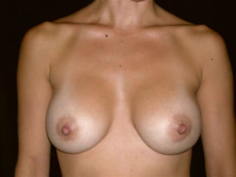 Breast augmentation after 293919