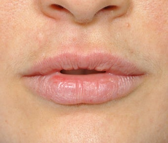 Lip Augmentation before 536185