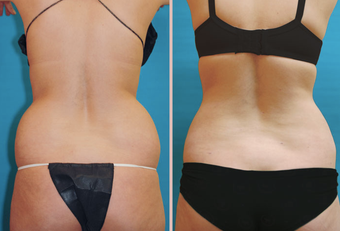 Back / Waist Lipo before 293421