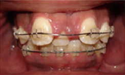 Braces and Extraction before 349089