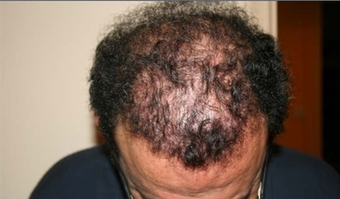 Hair Transplant before 387806