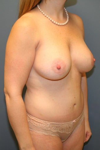 Mommy Makeover Breast augmentation and tummy tuck 539084