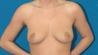 Breast Augmentation before 600680