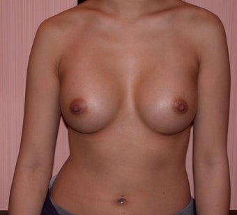 Breast Augmentation after 182881