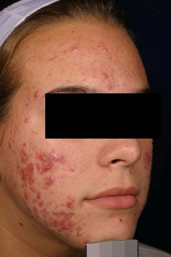 Acne laser treatment with PDT before 136707