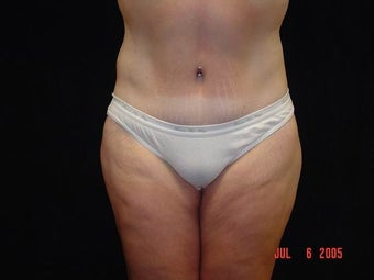 Body Lift with Liposuction of Abdomen, Waist, Flanks after 203460