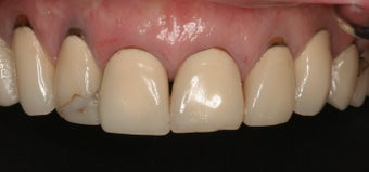 All-Ceramic Crowns before 253183