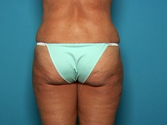 Liposuction after Age 50 after 138881