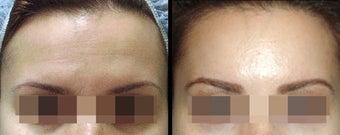 Endoscopic Brow Lift by Wave Plastic Surgery & Dermatology Center before 649395