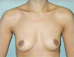 Breast Implants before 475165