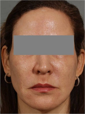 47 year old female treated for melasma, age spots, large pores and rough skin texture after 645449