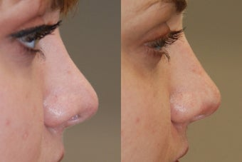 Non-Surgical Rhinoplasty. Profile view. before 170672
