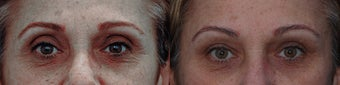 Upper eyelid filler with restylane before 323782