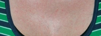 Laser tattoo removal after 374507