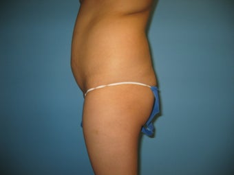 buttock augmentation (Brazilian buttock lift) before 284964
