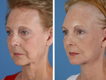 Facelift, Browlift, Upper and Lower Eyelid Surgery after 253952