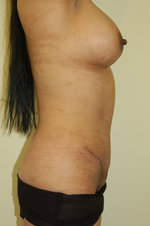 Abdominoplasty after 321229