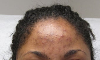 Vi Peel for acne and hyperpigmentation before 298237