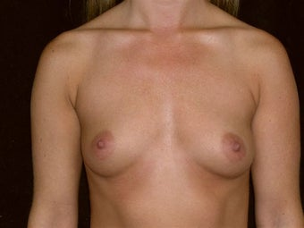 Breast augmentation before 293904