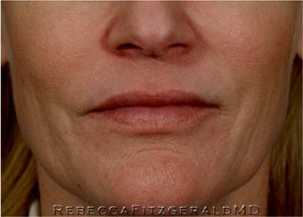 Sculptra, Botox, Juvederm and Restylane after 319352