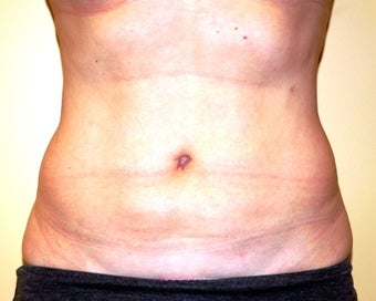 Ultrasonic assisted (VASER) Liposuction after 235764