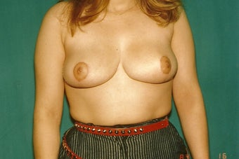 Breast Reduction after 401277