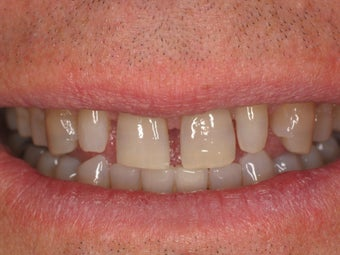 Porcelain Veneers 366635