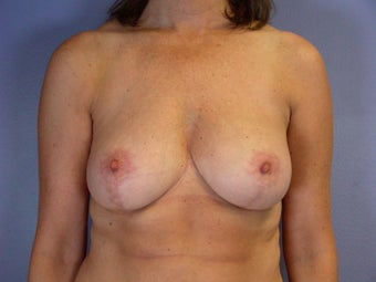 Breast Reduction  after 306342