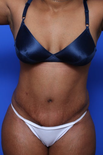 Abdominoplasty after 615612