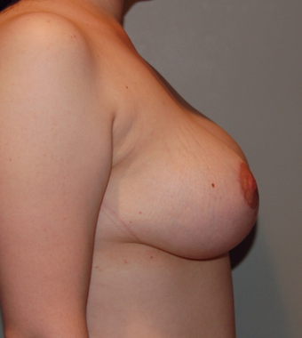 Vertical Breast Lift after 275504