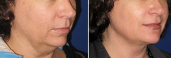 Chin / Neck Liposuction before 342954