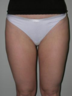 Liposuction after 258650