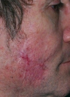 PDL scar treatment before 374580