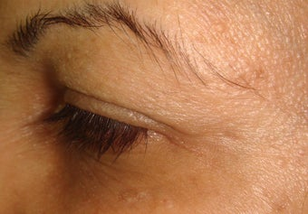 botox injections after 263048