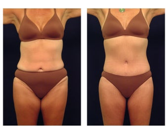 Tummy Tuck or Abdominoplasty before 283085