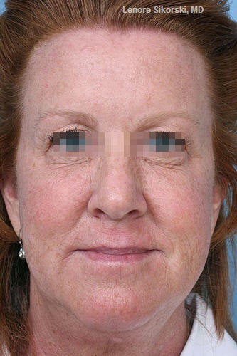 Botox for Forehead, Glabella and Crows Feet after 114165