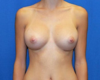 Breast Augmentation after 615595