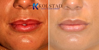 Juvederm Lip Augmentation before 517512