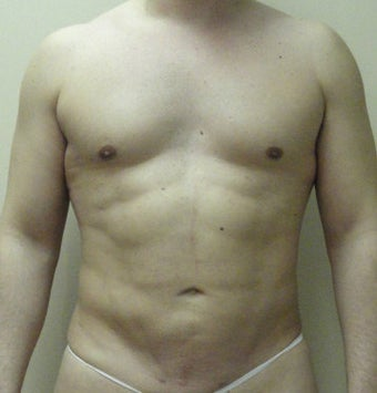 VASER Liposuction (HiDef) after 570288