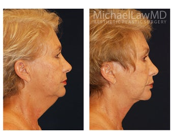 Facial Rejuvenation 395177