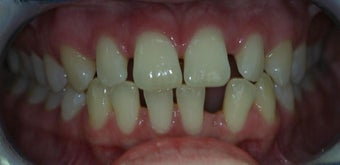 Porcelain Veneers and Composite Bonding before 374753